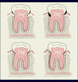 inflammation of the gums vector image vector image