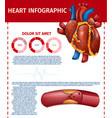 infographic realistic heart and blocked fat vessel vector image vector image