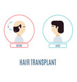 hair transplant for men vector image vector image