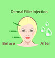 cosmetic surgery filler vector image vector image