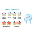 diseases teeth caries pulpitis periodontitis vector image