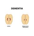 atrophy hippocampus dementia alzheimers disease vector image vector image
