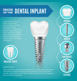 teeth maquette structural elements of dental vector image vector image