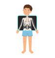 cartoon boy patient xray vector image