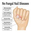 no fungal nail disease vector image