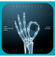 X-ray of both human hand - OK symbol vector image vector image
