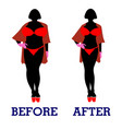 before and after treatment vector image vector image