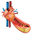 diagram showing human heart and fat veins vector image vector image