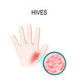 skin rash hives or urticaria vector image vector image