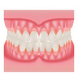 dentures with white teeth dentition the gums of vector image