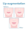 plastic surgery lip vector image vector image