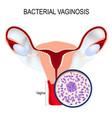 uterus and close-up of gardnerella vaginalis vector image vector image
