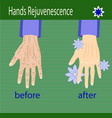hands care before after effect vector image vector image