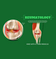 realistic 3d knee with torn miniscus vector image vector image