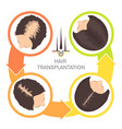 hair transplantation for women-4 step infographics vector image vector image