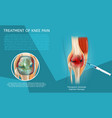 realistic treatment of knee pain vector image vector image