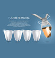 tooth removal medical poster banner vector image vector image