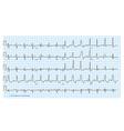 cardio diagram blue vector image vector image