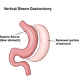 Cartoon of Vertical Sleeve Gastrectomy vector image vector image