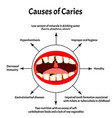causes caries smell from mouth halitosis vector image vector image