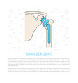 shoulder joint replacement vector image vector image