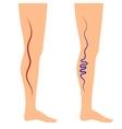 leg veins vector image
