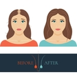 Balding woman before anf after hair treatment vector image vector image