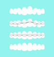 set of teeth dental vector image