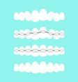 set of teeth dental vector image vector image