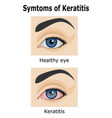 keratitis vector image