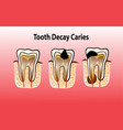 tooth decay caries vector image