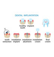 infographics dental implantation stages of vector image