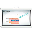 Diagram showing intradermis injection vector image vector image