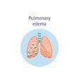 pulmonary edema a lung disease medicine diagram vector image vector image