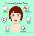 different type of acne with vector image vector image