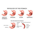 pathology of the stomach vector image vector image