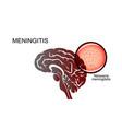 brain causative agent of meningitis vector image vector image