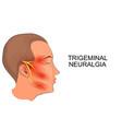 trigeminal neuralgia neuroscience vector image vector image