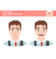 acne treatment before after facial cleansing foam vector image vector image