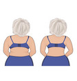 fat and slim girls back fat thig liposuction vector image vector image