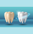 clean and dirty tooth before and after whitening vector image