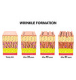 stages of wrinkles at different ages anatomical vector image vector image
