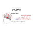 epilepsy factors of emergence vector image vector image