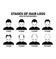 hair loss stages and types of male hair loss male vector image vector image