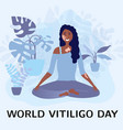 smiling woman with vitiligo sitting in a lotus vector image