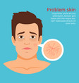 man face skin problem buried capillaries vector image vector image