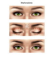 blepharoplasty suture stitches composition vector image vector image
