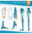 foot and leg pain arthritis and rheumatism vector image