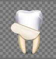 tooth veneer whitening dental technician vector image