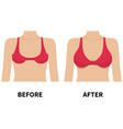 female breast before and after plastic surgery vector image vector image